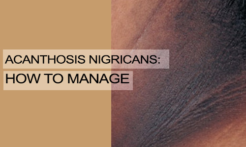 Acanthosis Nigricans: How to Manage