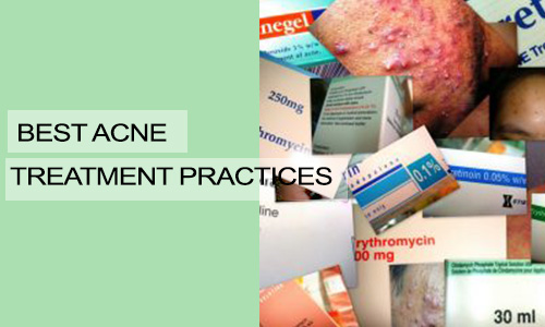 Best Acne Treatment Practices