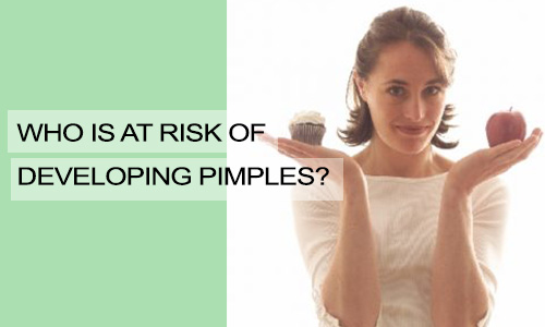 Who is at Risk of Developing Pimples?