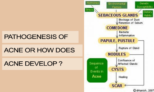 Pathogenesis of Acne or How Does Acne Develop?
