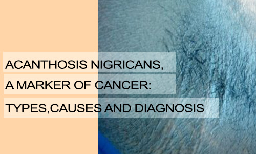 Acanthosis Nigricans, a Marker of Cancer: Types, Causes and Diagnosis