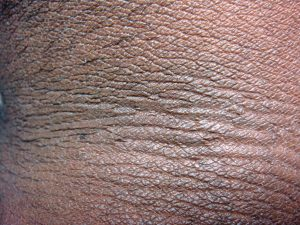 Treatment of Acanthosis Nigricans: Treating the Cause