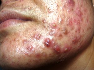 Very Severe Nodulocystic Acne