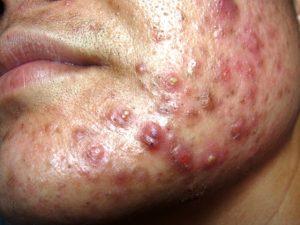 Very Severe Nodulocystic Acne
