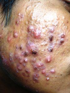 Very Severe Nodulocystic Acne FAQ
