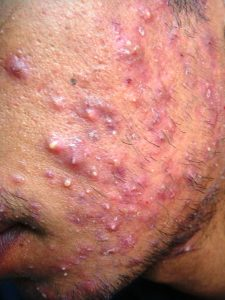 Severe Grade 3 Inflammed Acne