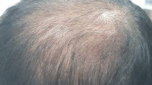 Diagnosis of Hair Loss includes extensive history taking and investigations