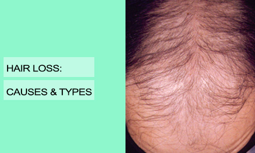 Hair Loss:  Causes & Types