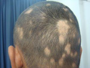 Alopecia Areata: Treatment Tips