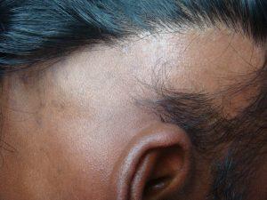 Extensive Alopecia Areata