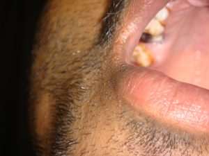 Alopecia of Dental Origin
