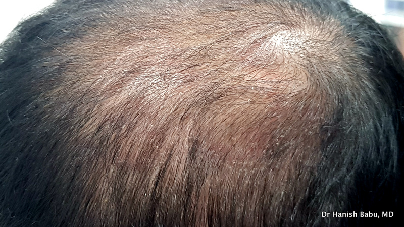 Dandruff is a common physiological problem