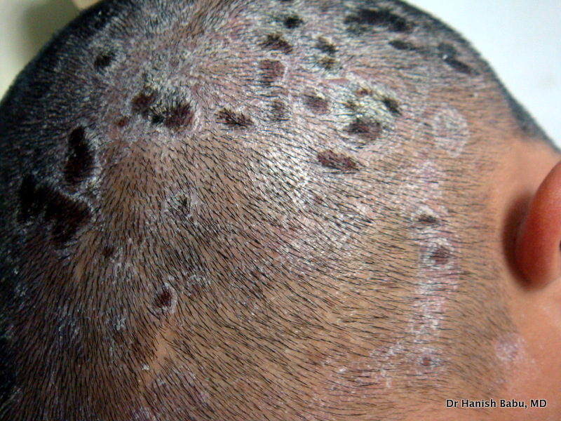 Itchy scalp: Treatment of Scalp Psoriasis involves removal of scales with medications and shampoo.