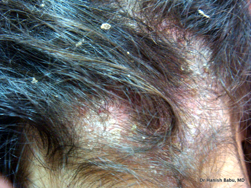Scalp Psoriasis causes varying degree of itchy scalp