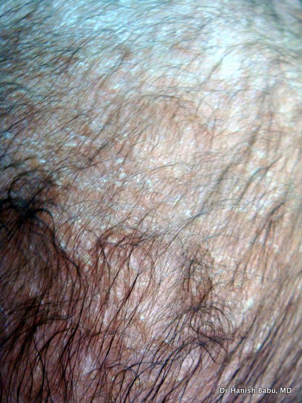 Infantile Seborrheic dermatitis or cradle cap.