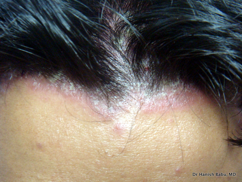 Itchy Scalp may be caused by many diseases, including Psoriasis