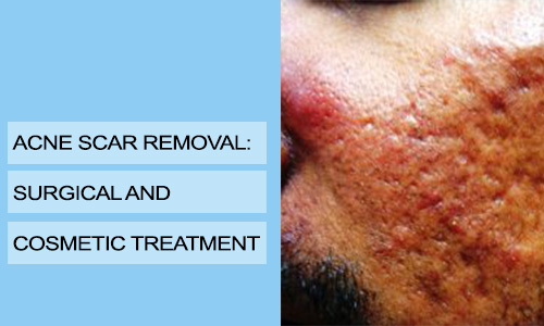 Acne Scar Removal: Surgical and Cosmetic Treatment
