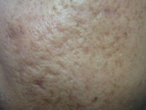 Acne Scar is caused by delayed or improper treatment of inflamed acne