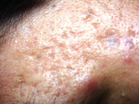 Acne Scars : FAQ