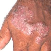 Psoriasis Hands