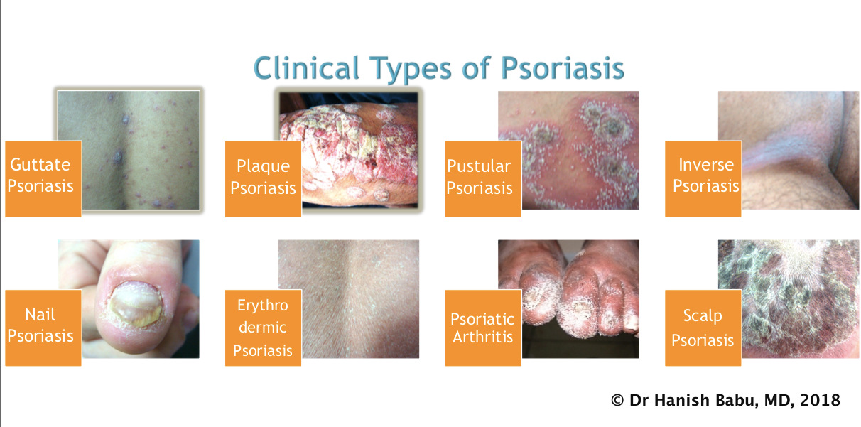 clinical types of psoriasis