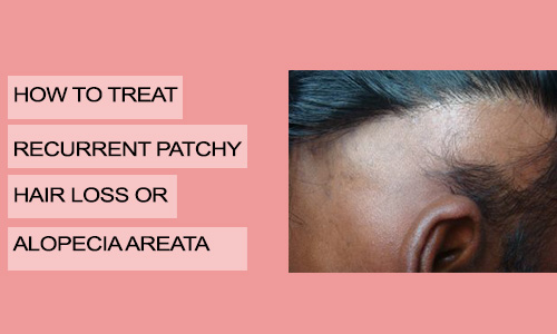 How to Treat Recurrent Patchy Hair Loss or Alopecia Areata