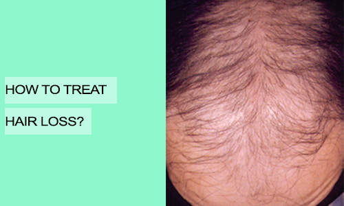 How to Treat Hair Loss?