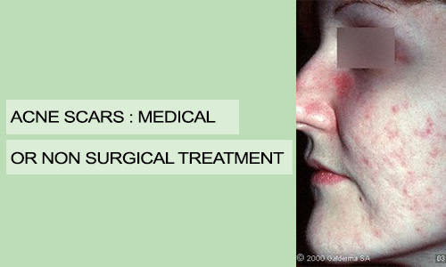 Acne Scars: Medical or Non Surgical Treatment