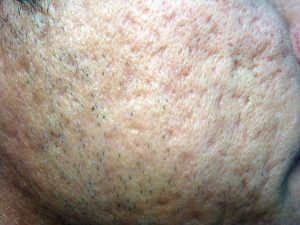 Acne Scar Treatment requires patience and perseverance.