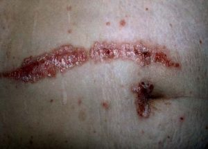 Koebner Phenomenon in Psoriasis